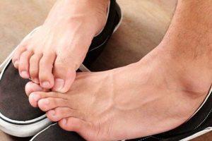 tại sao bị giãn tĩnh mạch chân