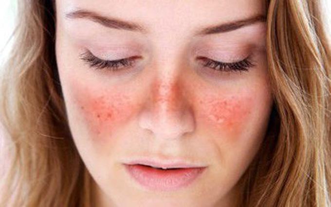 Lupus ban đỏ ở phụ nữ