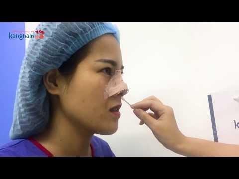 Chuyên gia Kangnam giải đáp Nâng mũi có đau không?